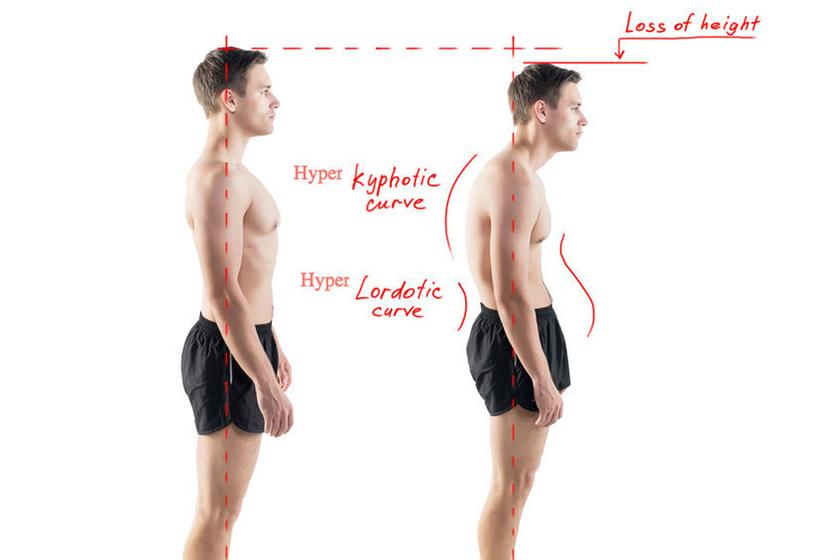 Gù lưng làm cảm giác bạn lùn hơn chiều cao thực tế