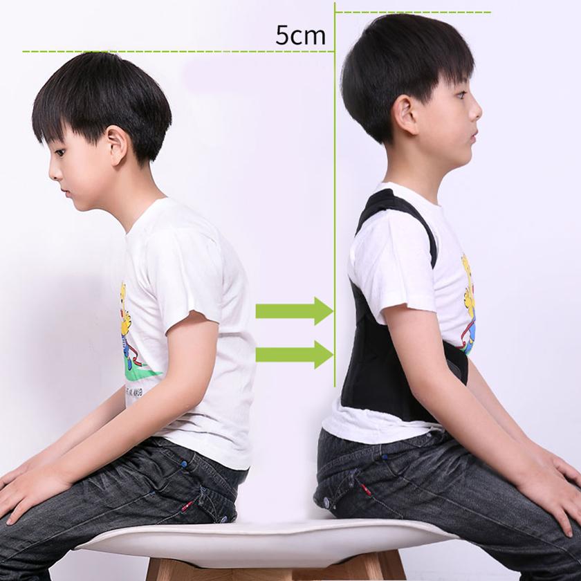 Bệnh gù lưng có thể ảnh hưởng tới sự phát triển chiều cao ở trẻ