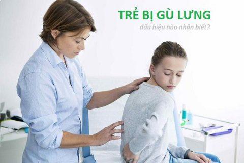 dấu hiệu của gù lưng ở trẻ em