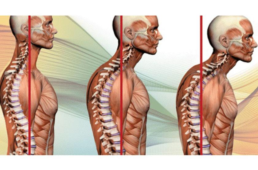 cách điều trị lưng tôm