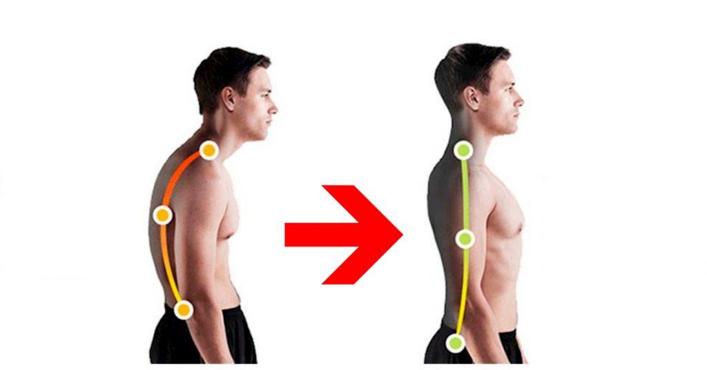 Giải đáp thắc mắc: Gù lưng có chữa được không?