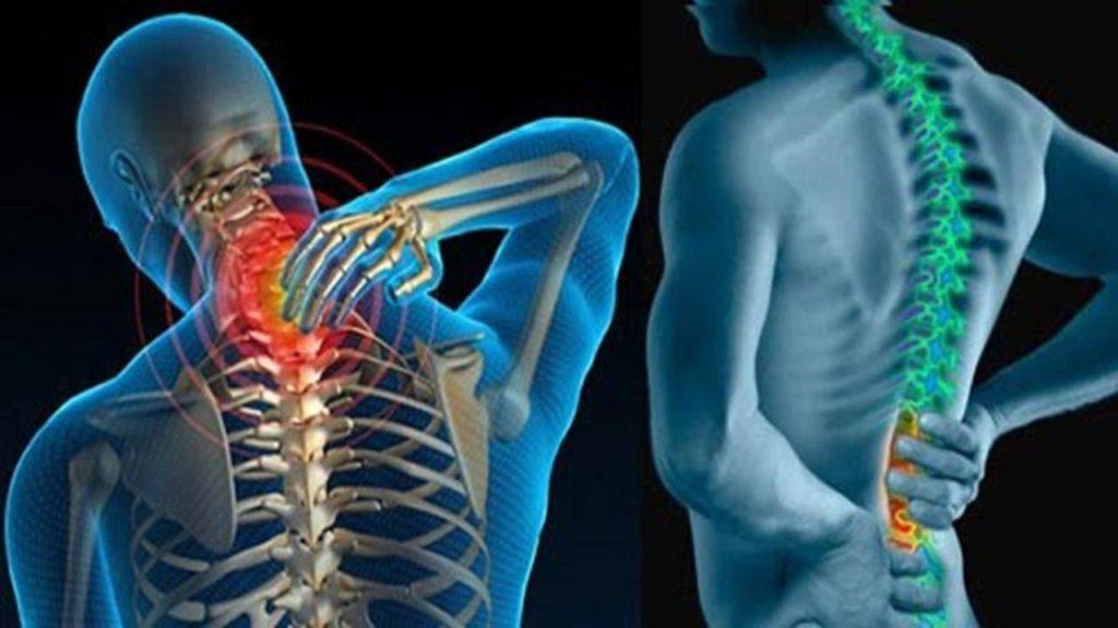 Tổng hợp 5 cách chữa lưng tôm phổ biến nhiều người thực hiện