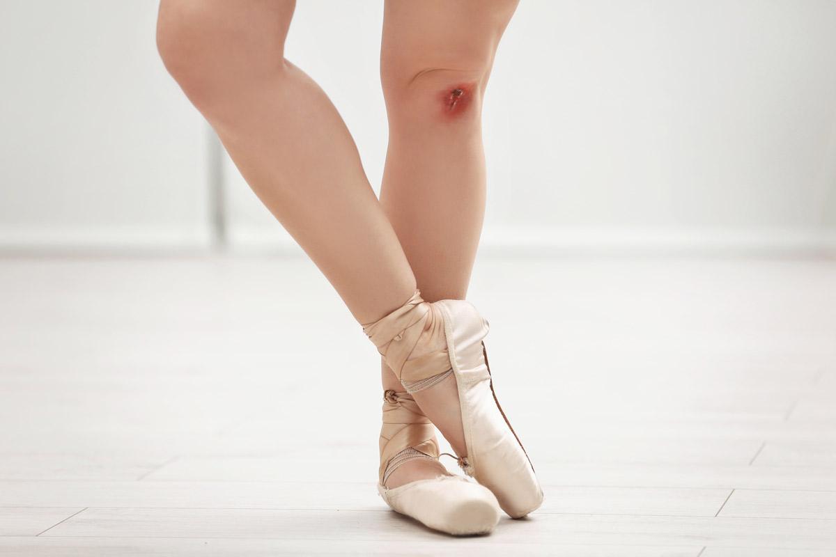 Băng đầu gối tập nhảy