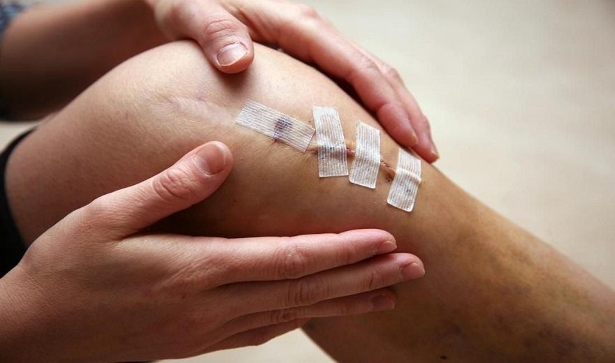 5 chấn thương thể thao đầu gối thường gặp, phổ biến