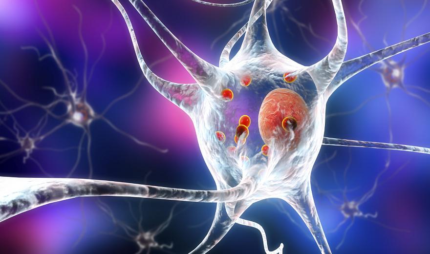 Bệnh Parkinson: Nghiên cứu xác định nguyên nhân và lý do hy vọng
